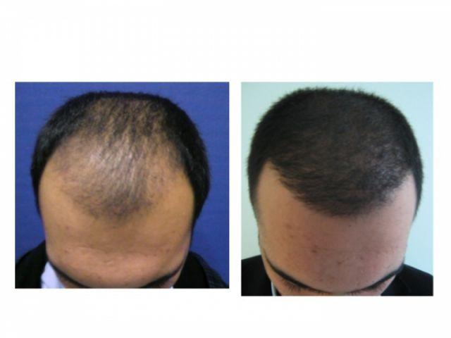 les deux m thodes de greffe de cheveux implant capillaire nos 5 conseils pour la greffe de. Black Bedroom Furniture Sets. Home Design Ideas